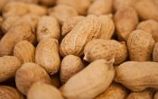 Ask the Medical Expert: Food Allergies